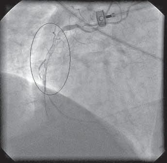 Pacient č. 2 – uzavřená pravá věnčitá tepna srozsáhlou trombózou.