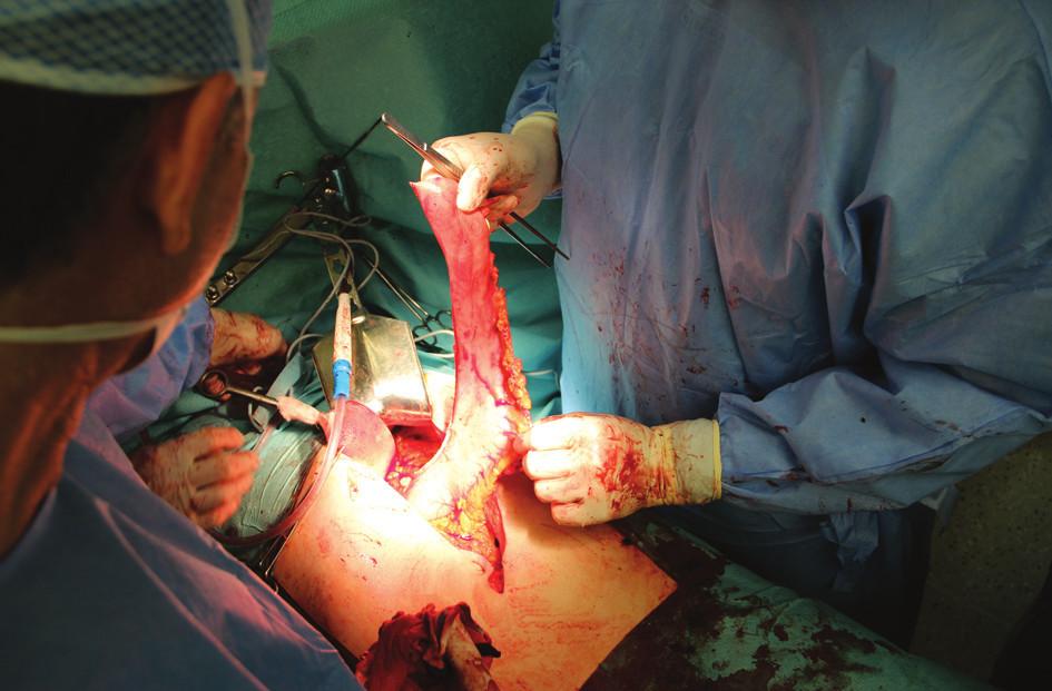 Operační nález: tubulizovaný žaludek s výživou cestou arteria gastroepiploica dextra připravený pro rekonstrukci na konci abdominální fáze výkonu