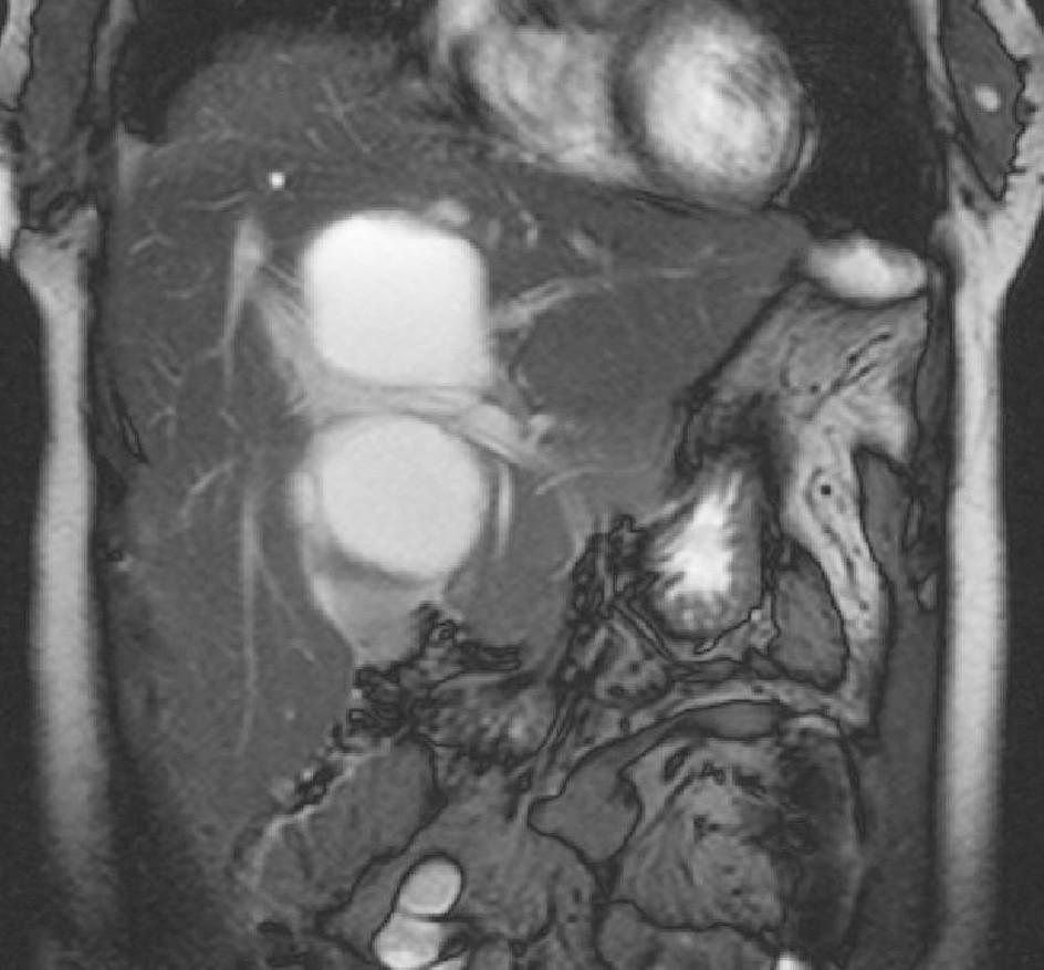 MR jater, T2-vážený obraz v koronární rovině. Je patrný vztah ložiska k portální žíle a jejím větvím. Fig. 3. Liver MRI, T2-weighted view, coronary plane. Relation between the focus and the portal vein and its branches is detectable.