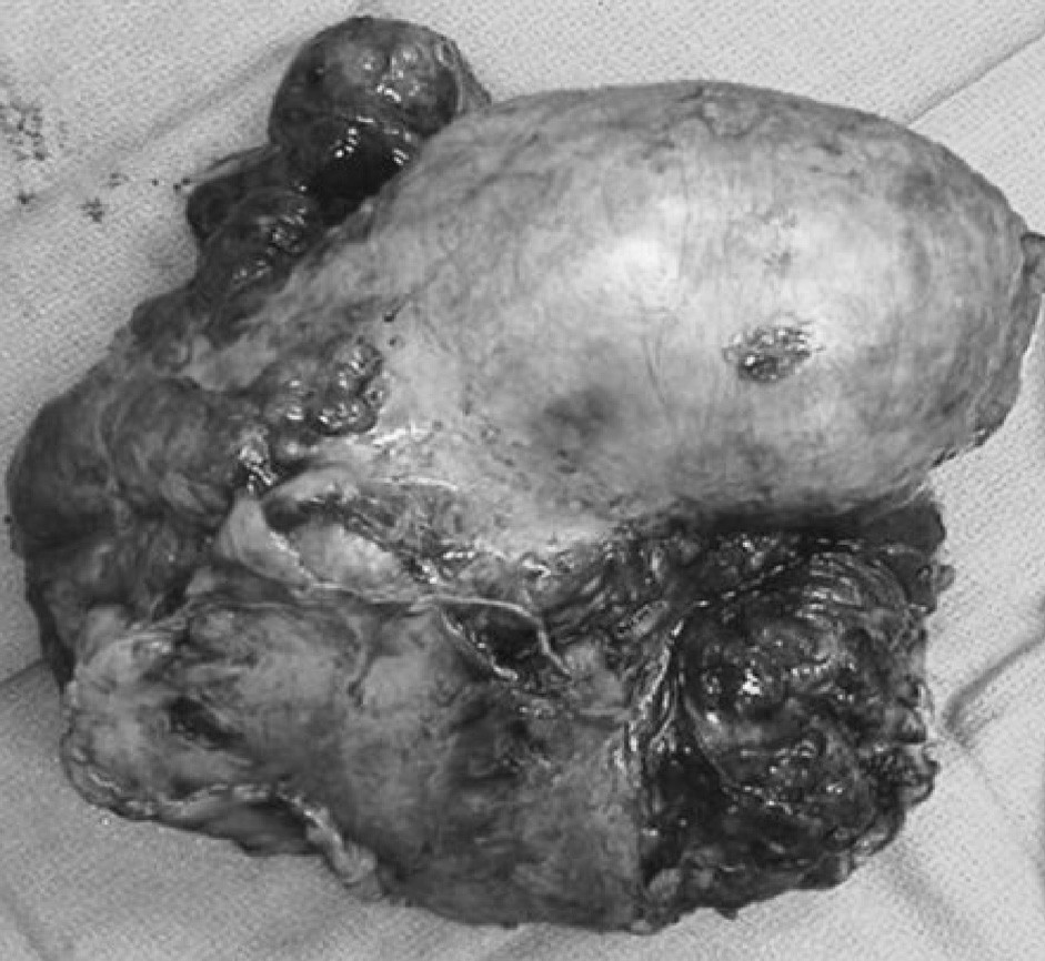 Resekát SFT s plicním lalokem Fig. 3. SFT resecate with a pulmonary lobe