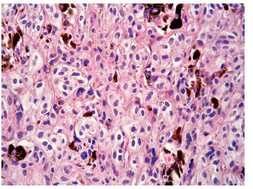 Obr. 1d. Melanocyty sekundárně vzniklého klonu mají monomorfní oválná a okrouhlá jádra s jemnou chromatinovou kresbou, bez výraznějších jadérek a jemně zrnitý melanin v cytoplasmě