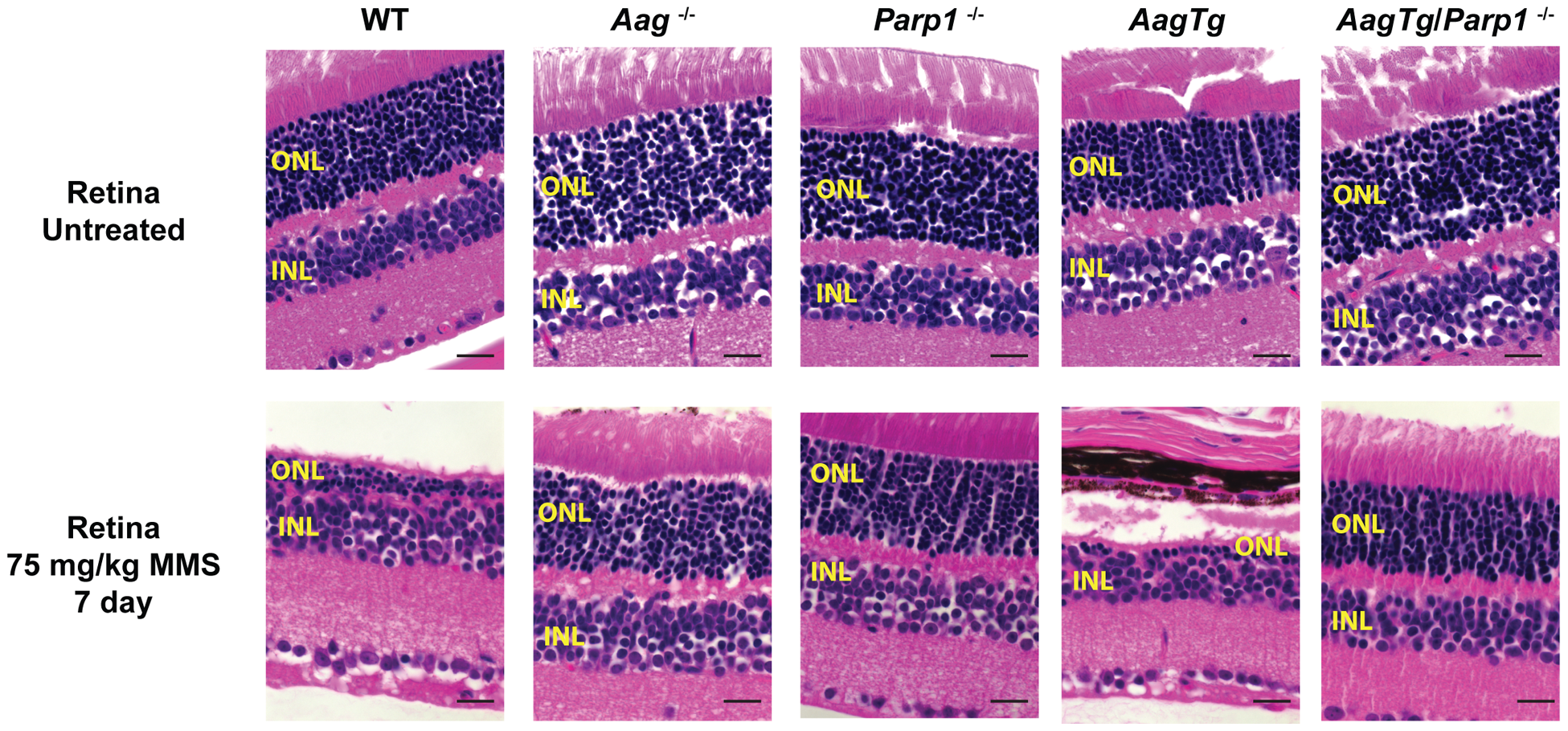 Parp1 deficiency protects against Aag-dependent, MMS-induced toxicity in retina photoreceptors.