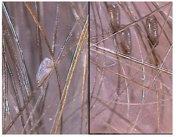Pediculosis capitis Vlevo prázdná hnida, vpravo plná.