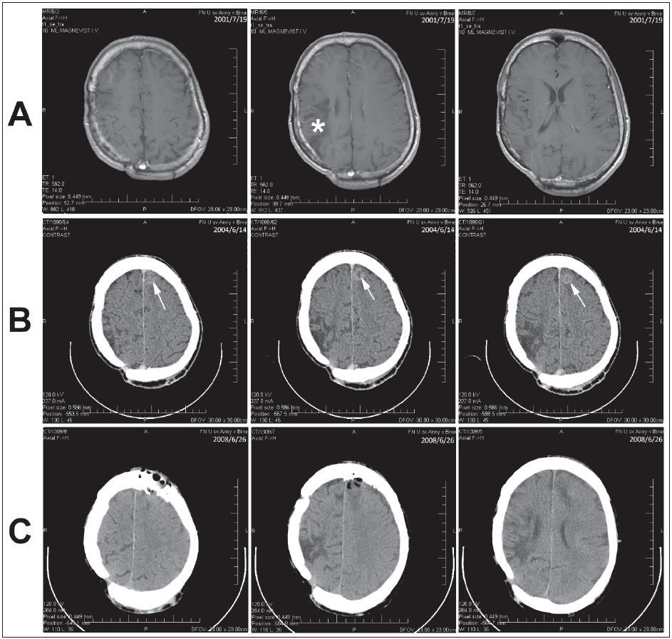 Obr. 3. Kazuistika 3. a) MR dokumentovaný stav po operaci astrocytomu WHO gr. II (hvězdička). b) CT vyšetření s odstupem s nálezem meningeomu (šipka). c) Kontrolní CT vyšetření po exstirpaci meningeomu.