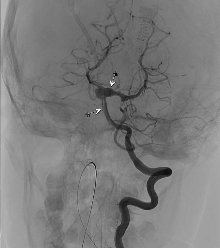 Angiografie, aneurysma a. basalis (2) přestupující na obě ACP (1)