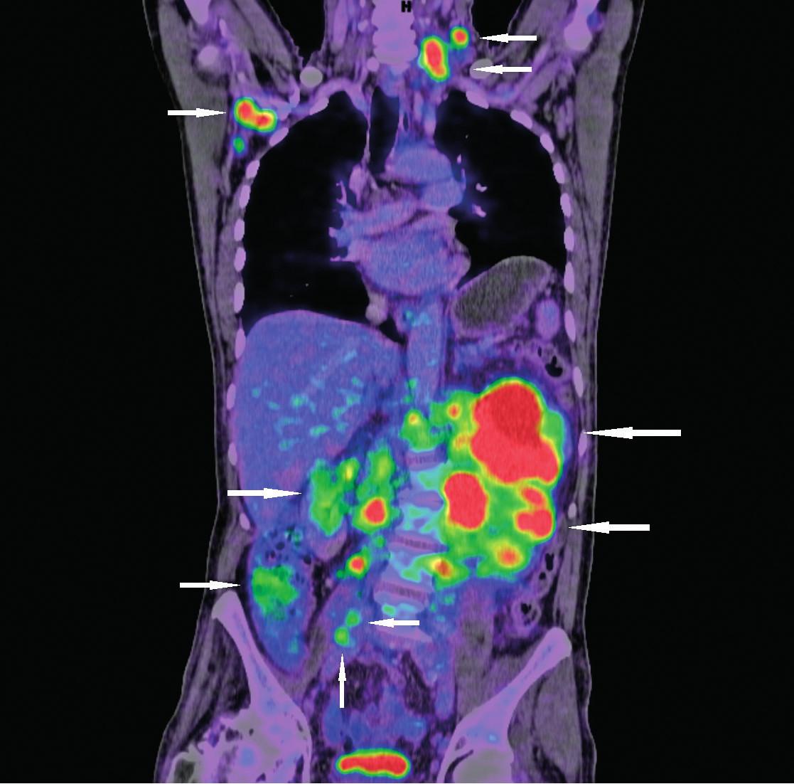Vyšetření 18F-FDG PET/CT k zhodnocení rozsahu nádorového postižení (nádorová infiltrace označena šipkami)  Vstupní snímky pacienta s novou diagnózou lymfomu z buněk pláště původně došetřovaného pro dyspepsie a hmotnostní úbytek