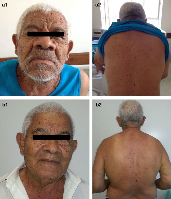 Sign of Leser-Trélat. Multiple lesions on the face (<b>a</b>) and back of the patient (<b>b</b>) compatible with seborrheic keratoses