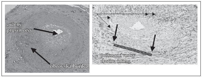 Histologický nález při TA [17].