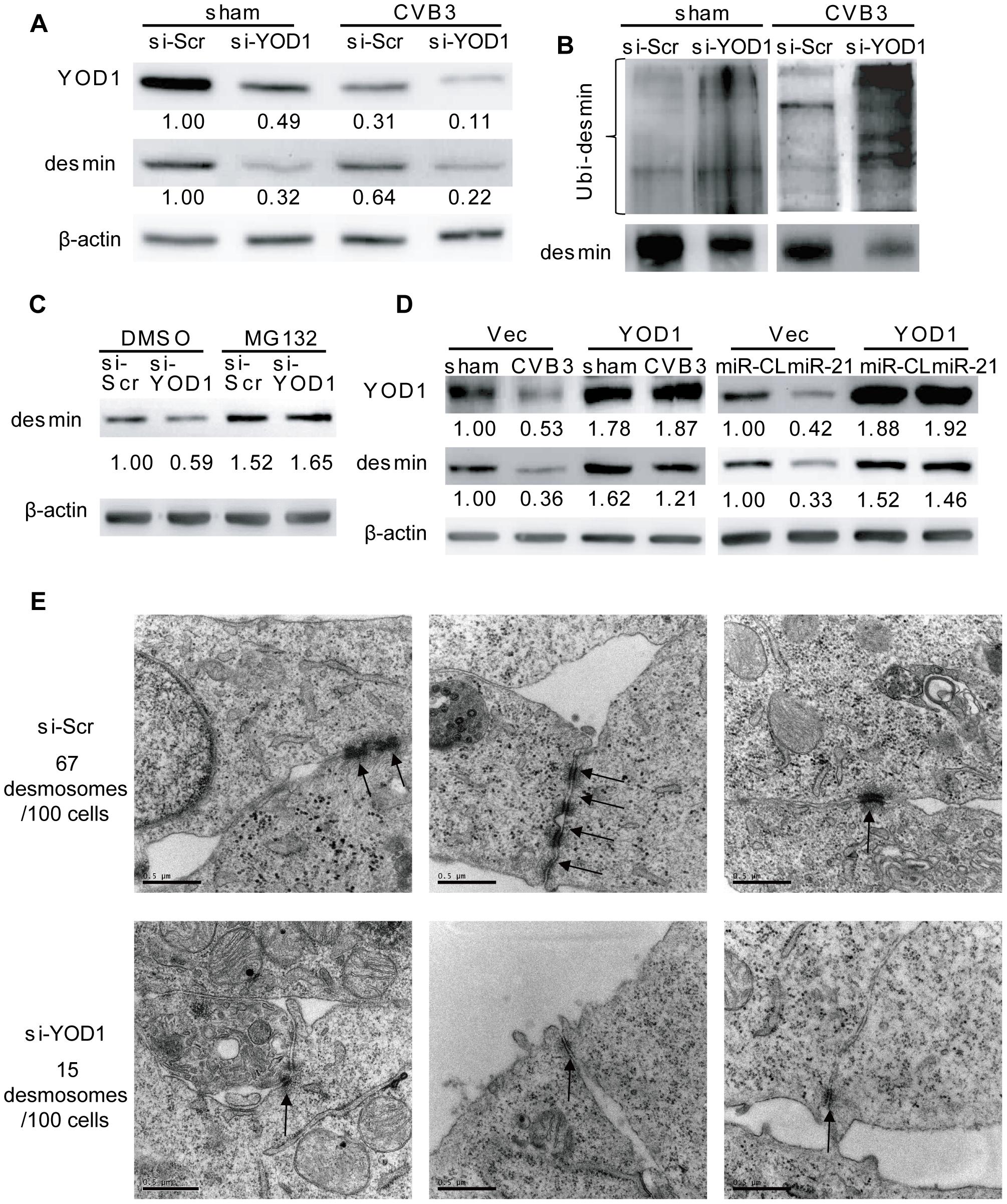 YOD1 regulates desmin degradation during CVB3 infection.