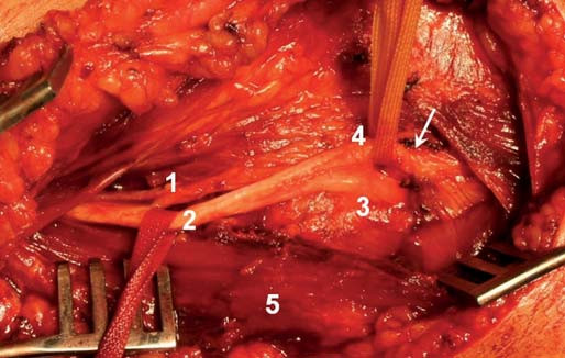 Peroperační snímek před dekompresí NR. 1 – rami musculares, 2 – kmen n. radialis, 3 – r. superficialis, 4 – r. profundus, 5 – m. brachioradialis. Šipka ukazuje Frohseho arkádu.