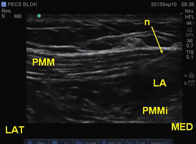 Obr. 9b Poloha jehly a distribuce lokálního anestetika mezi pektorálními svaly při pecs I bloku