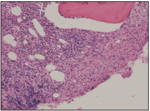 Histologické hodnocení válečku kostní dřeně získaného trepanobiopsií. Barvení hematoxylin-eozin, zvětšení 100krát. Normální kostní dřeň je částečně nahrazena pěnitými a vřetenitými histiocyty (vpravo).