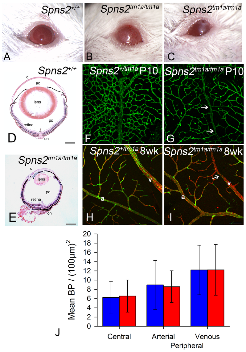 Eye defects in <i>Spns2<sup>tm1a/tm1a</sup></i> mice.