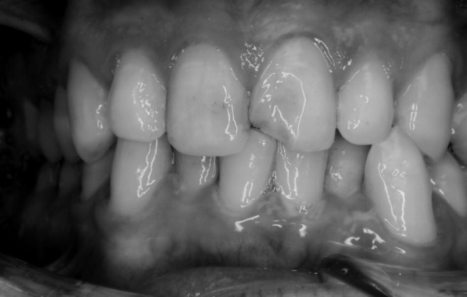 Nekomplikovaná fraktura zubu 21 u pacienta s mentální retardací středního stupně.