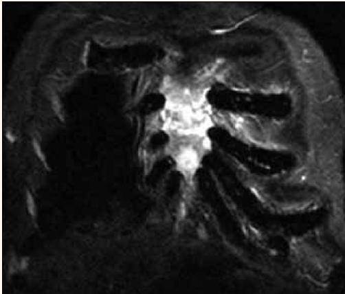 Infiltrace sterna myelomem v MR obraze.