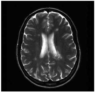 T2–T2 vážený obraz v transverzální rovině, FLAIR - FLAIR obraz v sagitální rovině; patrna je významná regrese demyelinizačního ložiska vlevo periventrikulárně.