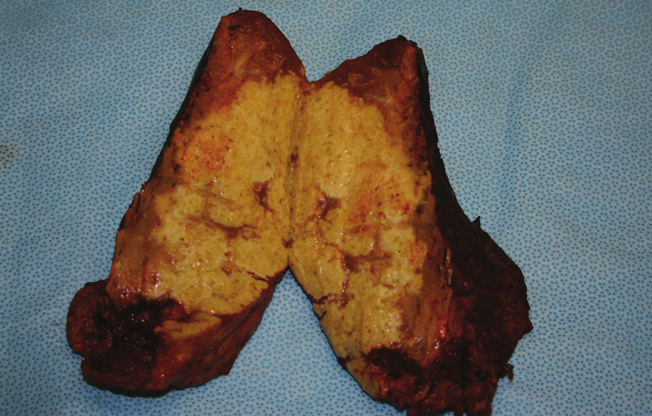 Resekát ložiska v pravém laloku jater s mnohočetnými drobnými cystičkami Fig. 7: Resected part of the right hepatic lobe with multiple small cysts
