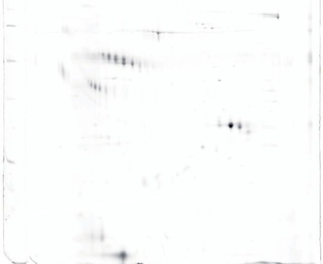 a, b. Porovnání vyšetření 2 vzorků normospermie vs. normospermie – bez zřejmých rozdílů (2-DE seminální plazma, IEF 3–10 NL, SDS-PAGE 12 % T dva paralelní velké gely. Barvení: Sypro Ruby).
