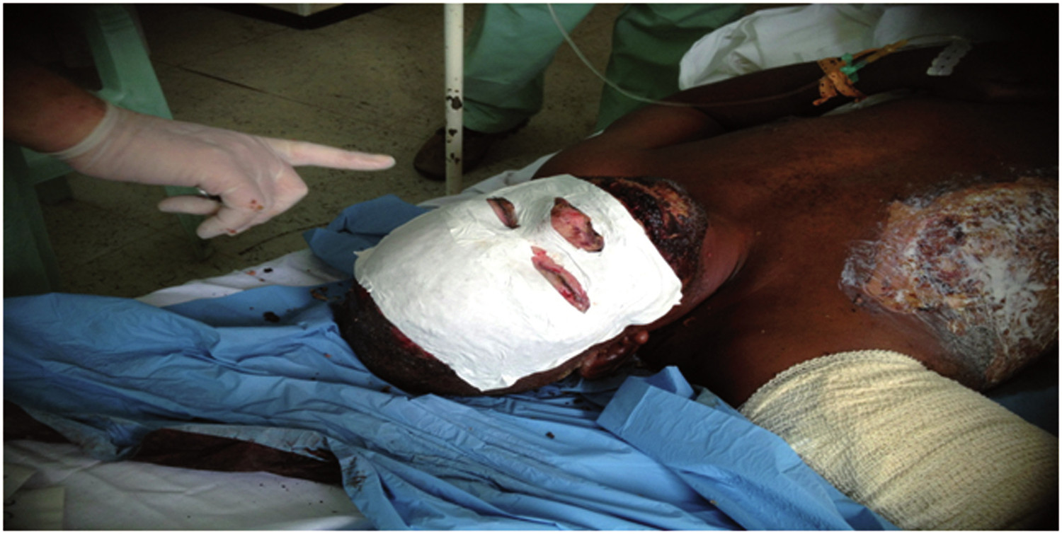 Pic. 4: Surgical treatment of the facial area with Suprathel mask (Photo: B. Domres, N. Hecker)