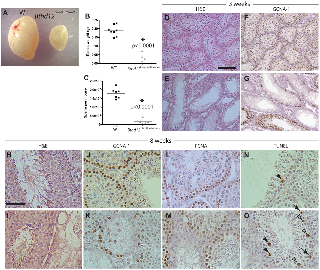 <i>Btbd12<sup>βGeoFlox/βGeoFlox</sup></i> mutants have reduced testicular germ cell proliferation.