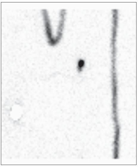 Současné zobrazení několika uzlin v jedné lokalizaci, kdy nelze vizuálně určit první sentinelovou uzlinu. Uzliny měly různou aktivitu.