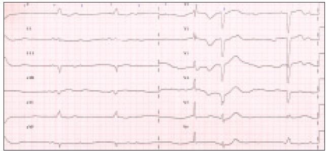 Vstupní EKG s patrnou atrioventrikulární blokádou III. st. se širokými QRS komplexy a bradykardií 20–32/min.