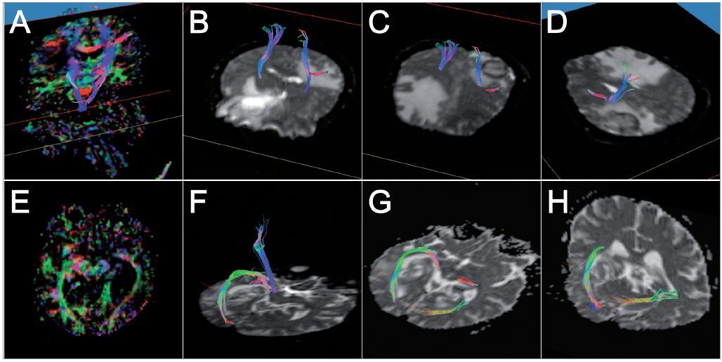 Barevné kódování směru viz obr. 1: horní řada – pacientka č. 1: A – srovnání rekonstruovaných drah s barevnou FA mapou; B, C – pohled na rekonstruované tr. corticospinales, 3D pohled zpředu zleva, D – pohled na levý tr. corticospinalis, 3D pohled zezadu zleva, patrný prostup kortikospinálního traktu perifokálním edémem i mírná dislokace; dolní řada – pacient č. 2: E – barevná FA mapa, axiální řez, patrná laterální dislokace optické radiace vlevo; F – 3D zobrazení rekonstruované pyramidové a zrakové dráhy na straně léze; G, H – porovnání rekonstrukcí optické radiace na obou stranách, na straně tumoru zřetelné odtlačení kraniolaterálním směrem.