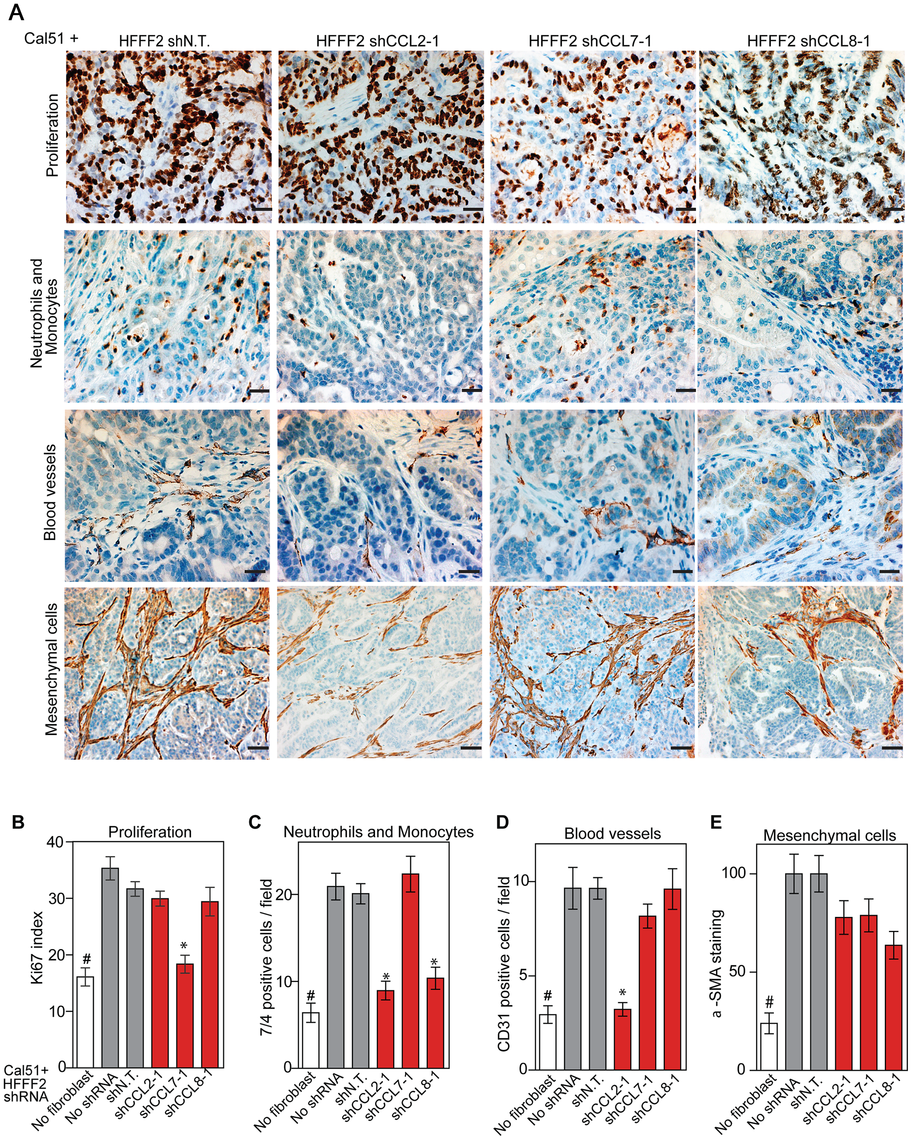 Diverse effects on the tumor microenvironment mediated by fibroblast secretion of the related chemokines CCL2, CCL7 and CCL8.