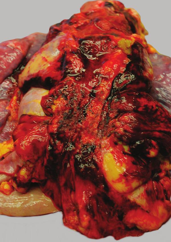 Krevní výrony v mediastinu.