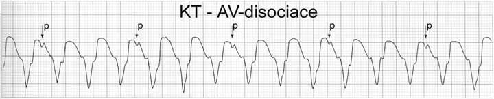 Komorová tachykardie. Průkaz atrioventrikulární disociace v případě tachykardie se širokým QRS-komplexem je zcela jistá známka svědčící pro komorovou tachykardii. V tomto případě je frekvence komor 120/min a frekvence síní 45/min.
