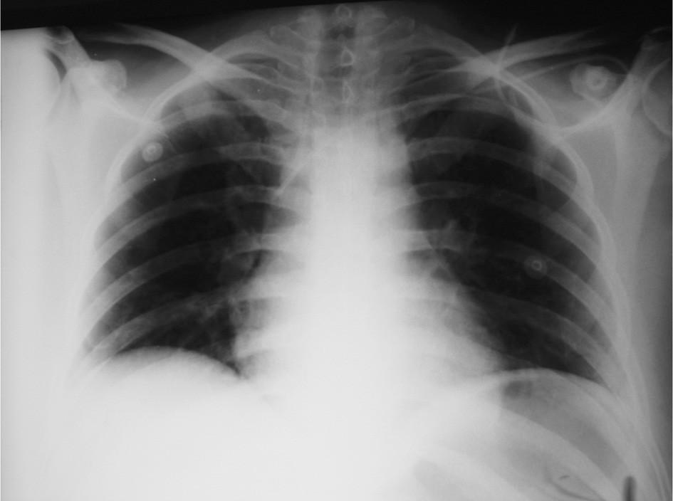 RTG plic – poloha CŽK po zavedení Fig. 1. Pulmonary x-ray – the venous line localization following its introduction