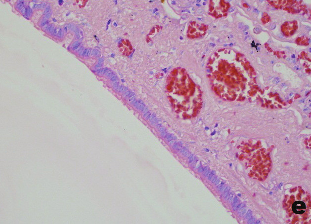 e) Časť povrchu krytá respiračným cylindrickým epitelom s riasinkami. (Giemsa; obj. 40x) e) Part of the surface covered by respiratory cyllindric ciliated epithelium (Giemsa; obj. 40x)