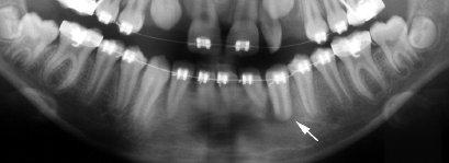 Detail z ortopantomogramu téže pacientky zhotoveného 3 dny po autotransplantaci ektopického špičáku s nedokončeným vývojem kořene (bílá šipka). V oblasti kořene transplantovaného špičáku je patrné projasnění odpovídající nově vypreparovanému příjmovému lůžku.