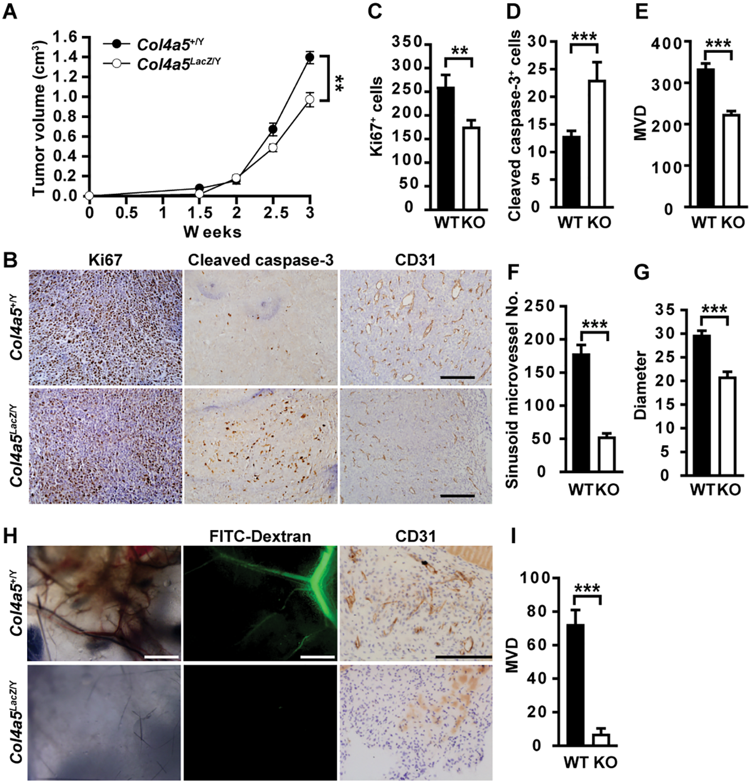 Stromal α5(IV) is required for tumor growth and tumor angiogenesis.