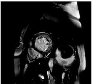 Srdeční magnetická rezonance (leden 2010) – krátký řez na levou komoru. Patrna hypertrabekulizace laterální, zadní a spodní stěny. Síla nonkompaktního myokardu (výše trabekul) v diastole je větší než 2,3 v poměru ke kompaktní vrstvě svaloviny. Splňuje tedy kritéria nonkompaktní kardiomyopatie levé komory (LVNC).