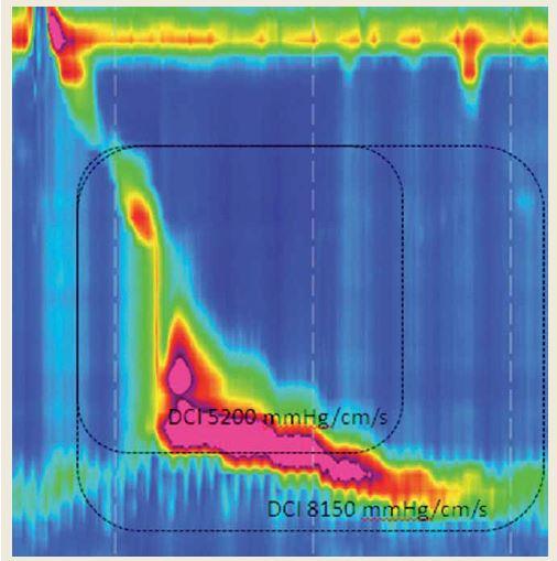 Hyperkontraktilita postihujúca aj oblasť dolného pažerákového zvierača. Jeho zahrnutie do hodnotenia vedie k zvýšeniu DCI nad hornú hranicu normy. Fig. 7. Hypercontractility affecting the lower esophageal sphincter. Its incorporation into DCI calculation results in hypercontractility with DCI exceeding the upper limit of a norm.