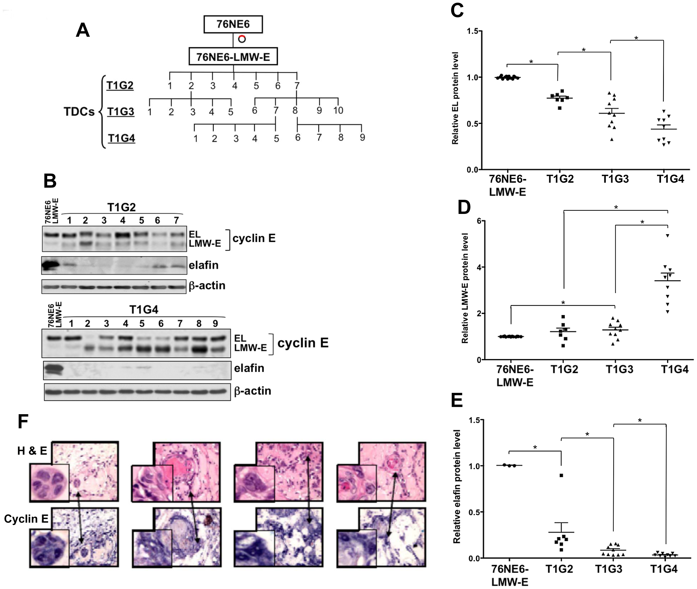 LMW-E renders hMECs tumorigenic, and LMW-E expression is selected with increased <i>in vivo</i> passaging.