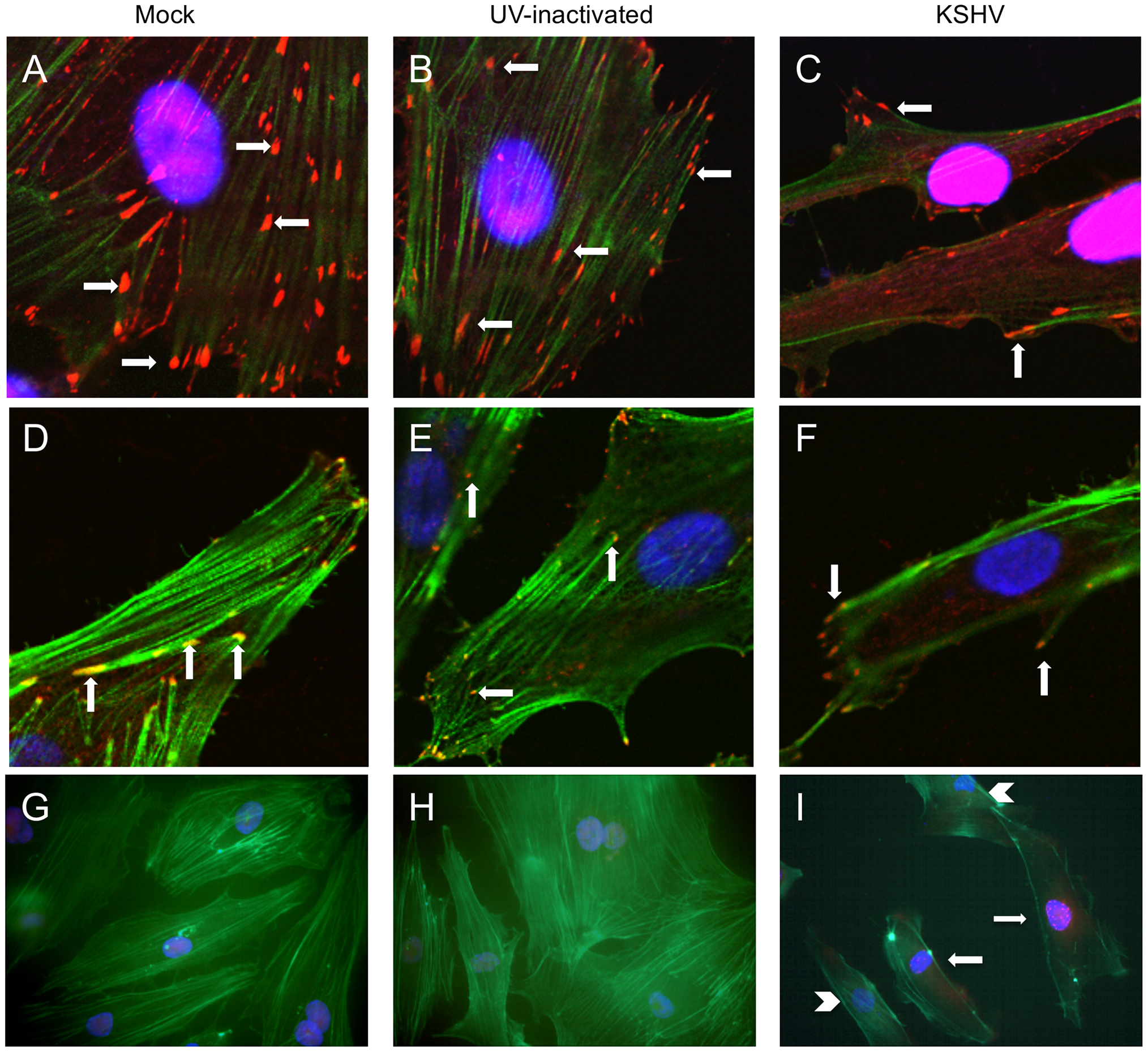 KSHV latent infection promotes turnover of focal adhesions and relocalization of integrin β3.