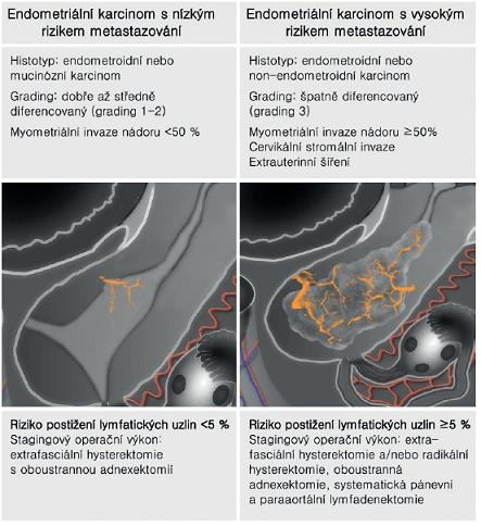 Rozlišení endometriálního karcinomu s nízkým a vysokým rizikem metastázování podle předoperační histologie a ultrazvuku s následnou optimální volbou stagingového výkonu