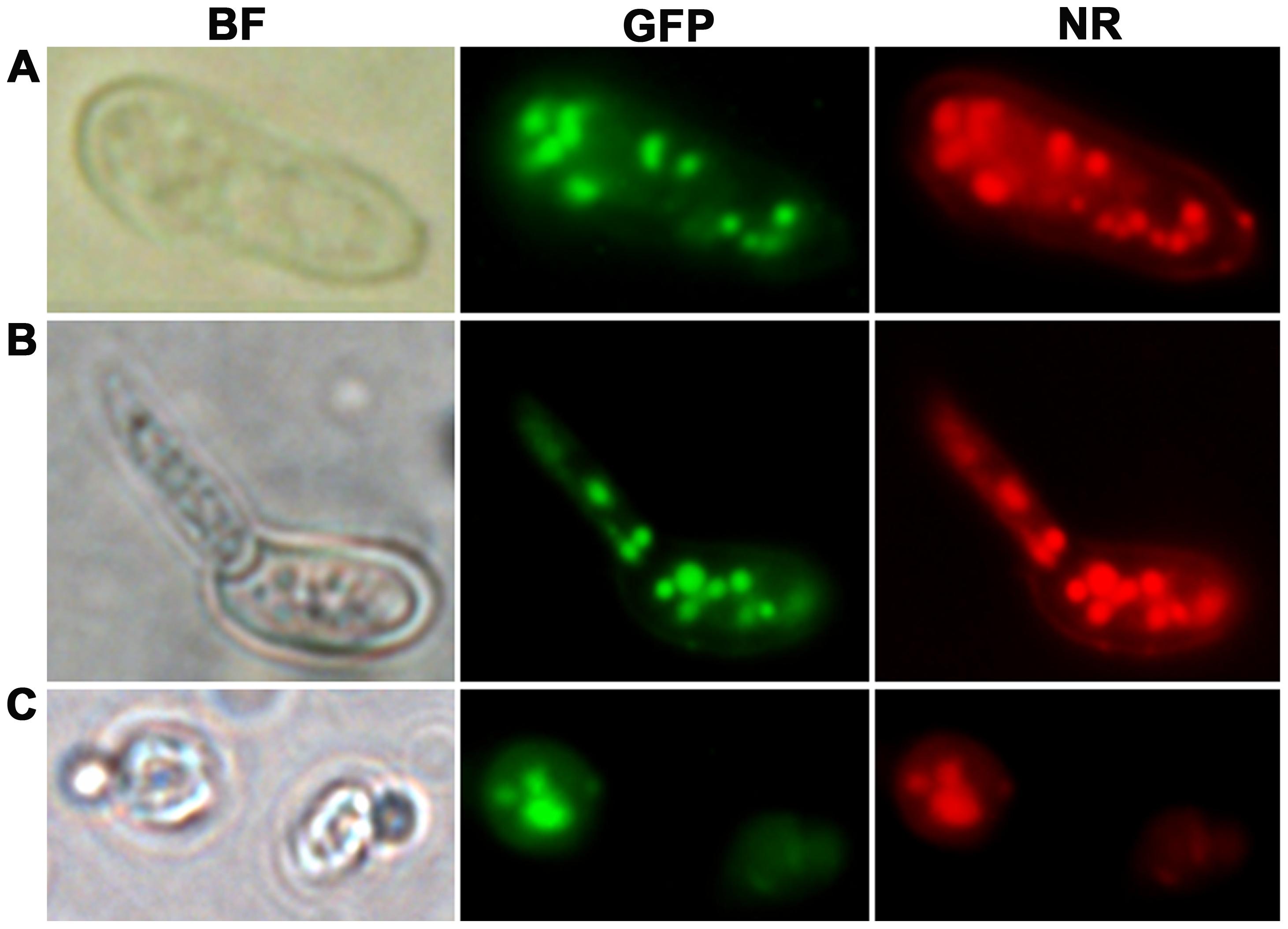 Intracellular localization of MEST1 in <i>Metarhizium robertsii</i> Mr2575 and budding yeast <i>Saccharomyces cerevisiae</i>.