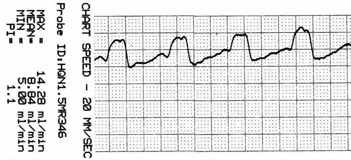 Záznam krevního průtoku v a. temporalis anterior (ATA) před zaklipováním, zachycen průměrný, maximální, minimální průtok a pulzatilní index.
