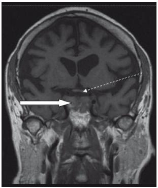 Magnetická rezonance. T1 vážený obraz, koronární řez nativně po operaci. Plná šipka ukazuje na oblast původního adenomu, kde je zřejmá smíšená denzita krve, pooperačního detritu a uzávěru spodiny sedla fascií. Tečkovaná šipka ukazuje na uvolněné chiazma.