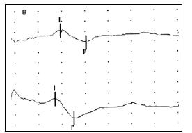 Obr. 1b) Registrace BAEP při stimulaci levého ucha (křivka nahoře) a pravého ucha (křivka dole) u pacienta s rozsáhlým poraněním mozku.