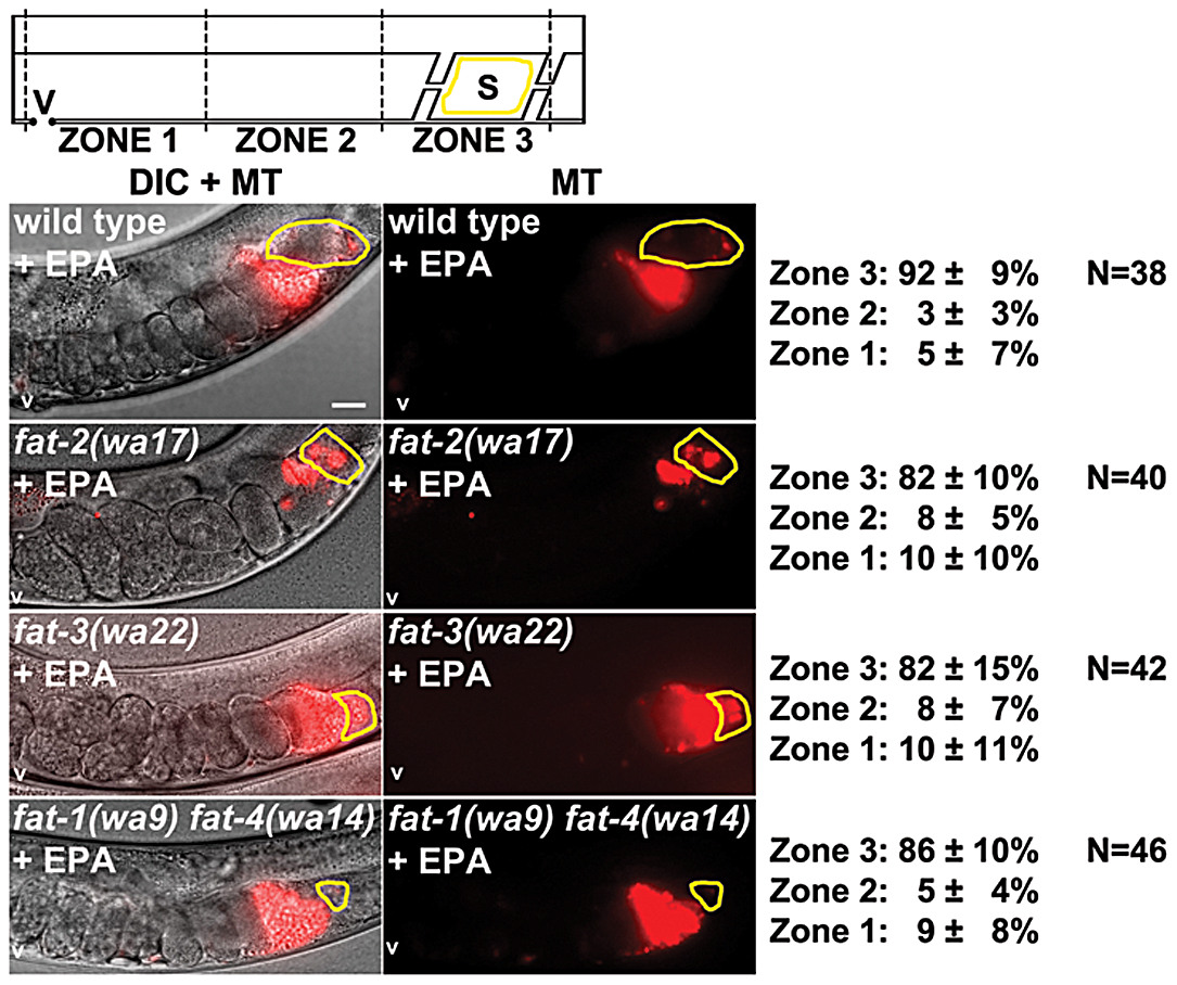 Effect of EPA supplementation on sperm guidance in wild-type and <i>fat</i> mutant hermaphrodites.