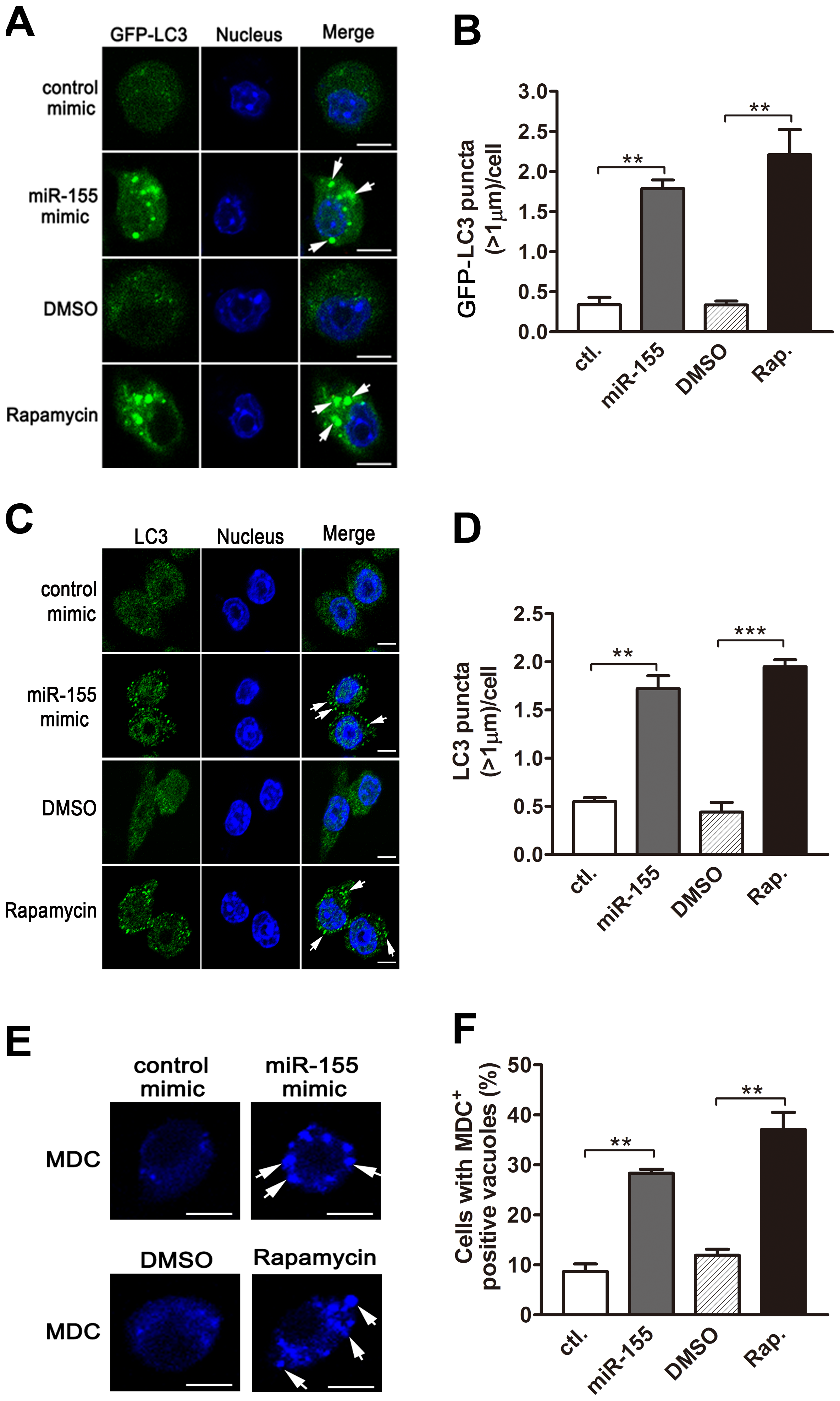 miR-155 promotes autophagosome formation.