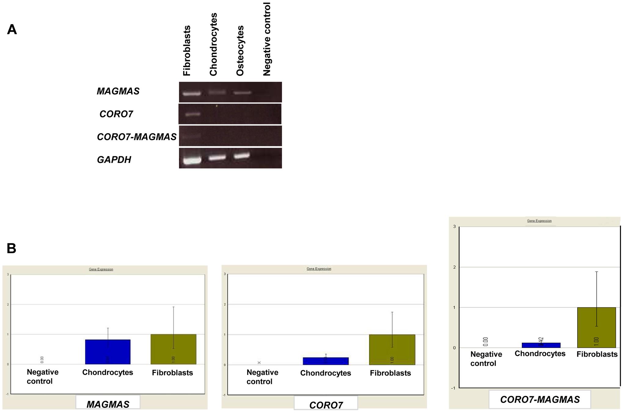 Transcript expression analysis of <i>MAGMAS</i>, <i>CORO7</i> and <i>CORO7-MAGMAS</i>.