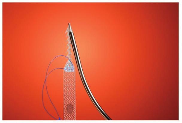 Kotevní a adjustační mechanismus pásky Ophira