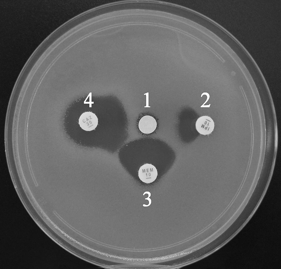 Průkaz metalo-β-laktamáz pomocí SDT s inhibicí EDTA. Synergie je patrná mezi všemi indikátorovými β-laktamy a inhibitorem (1 – disk s EDTA, 2 – imipenem, 3 – meropenem, 4 – ceftazidim) Fig. 1. Synergy disk test with EDTA for metallo-β-lactamase detection. Synergy can be observed between inhibitor and all β-lactams (1 – disk with EDTA, 2 – imipenem, 3 – meropenem, 4 – ceftazidime)
