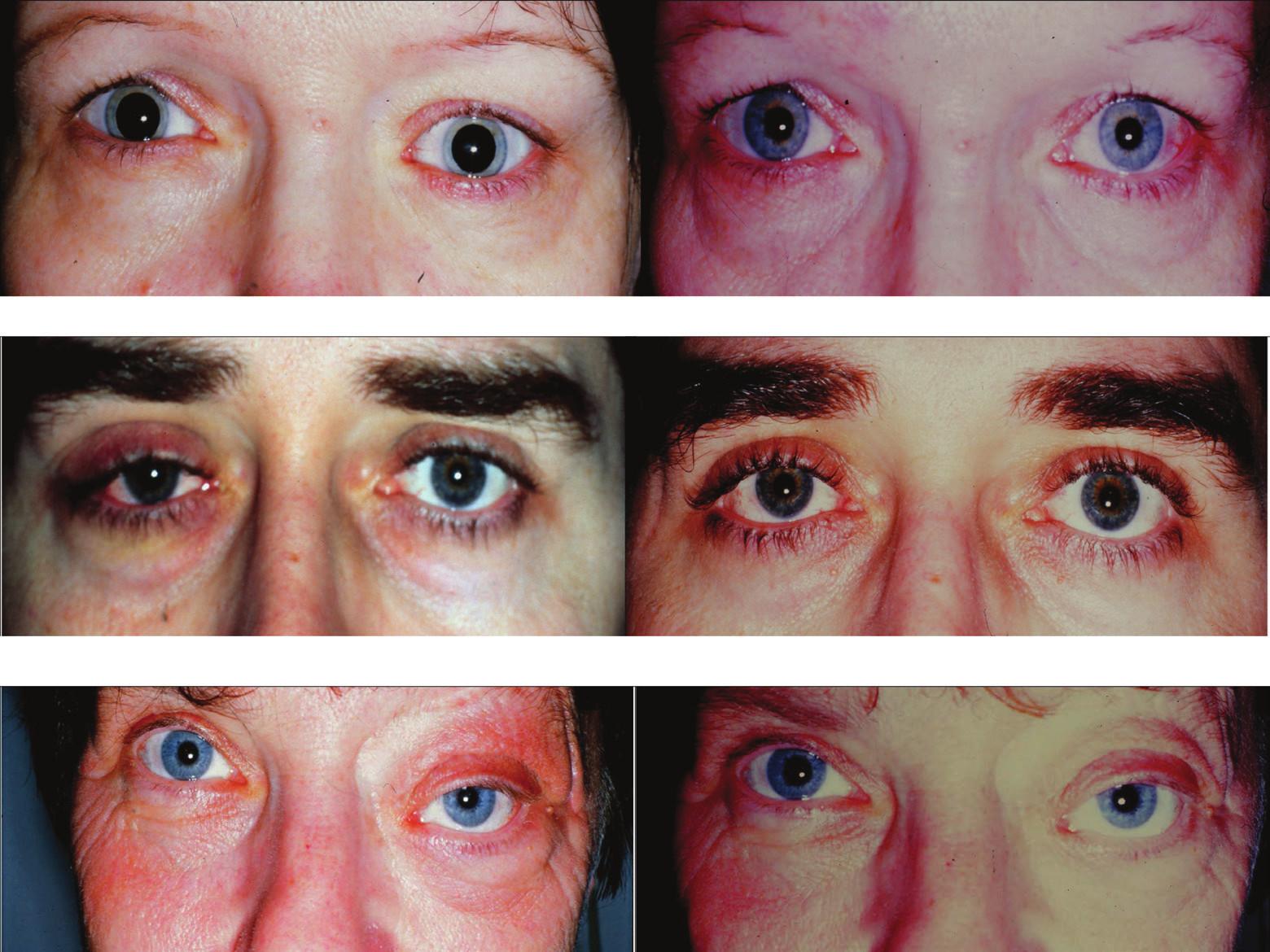 Klinický nález před stanovení histologické diagnózy (vpravo) a stav po zklidnění po zevní orbitotomii (vlevo) u pacientů se zánětlivým pseudotumorem slzné žlázy. Nahoře kazuistika č. 1, uprostřed kazuistika č. 2, dole kazuistika č. 3