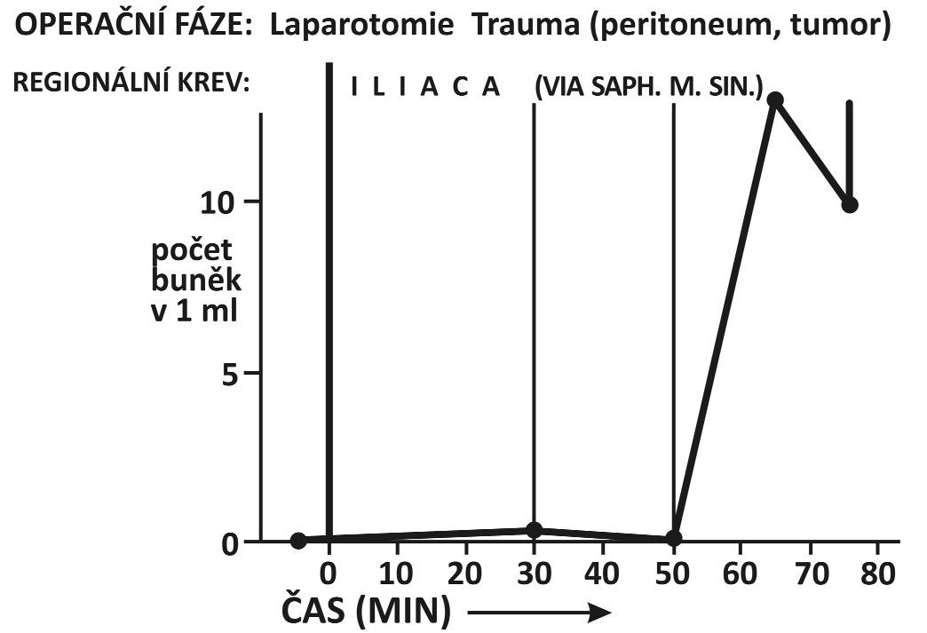 Hysterectomia abdominalis sec Wertheim pro carcinoma ovarii (1 případ)